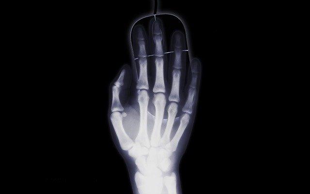 עכבר ארגונומי למחשב – לסובלים מבעיות במפרק כף היד
